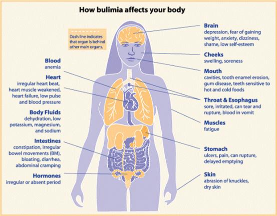 how-bulimia-affects-your-body